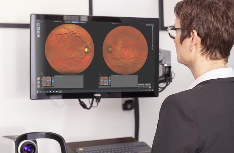 Auswertung des Netzhautscreenings beim Optiker
